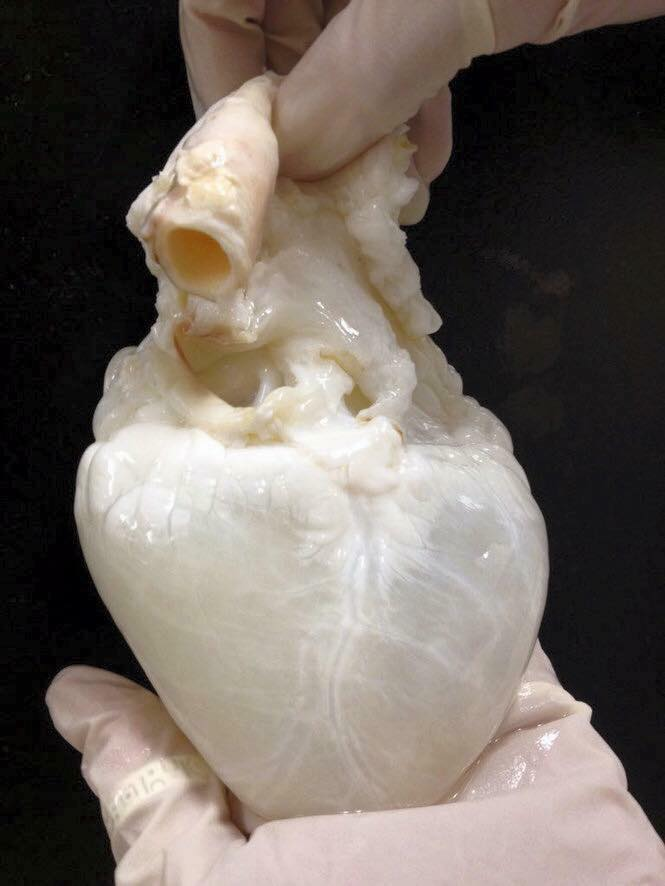The human heart completely drained of blood! :o